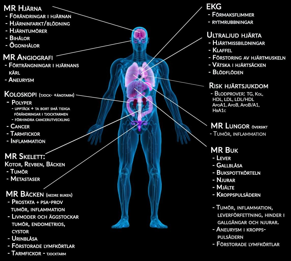 Inflammation i tarmen cancer 5febf945a94d9